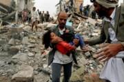 اليمن اختبار لإنسانيتنا