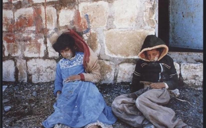 الأطفال – 1987 – جريمة صدام – هجوم الكيمياوي على مدينة سردشت